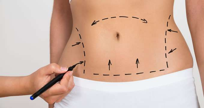 Abdominoplastia Madrid