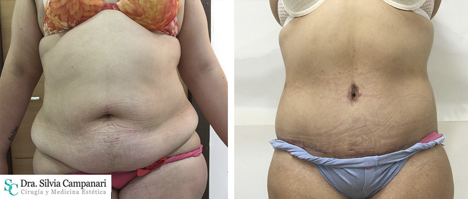 abdominoplastia-madrid03
