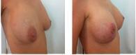 operación senos madrid