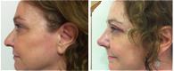 cirugía rinoplastia madrid