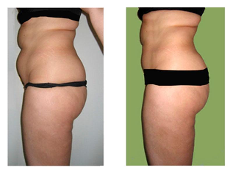 Liposucción de abdomen Madrid