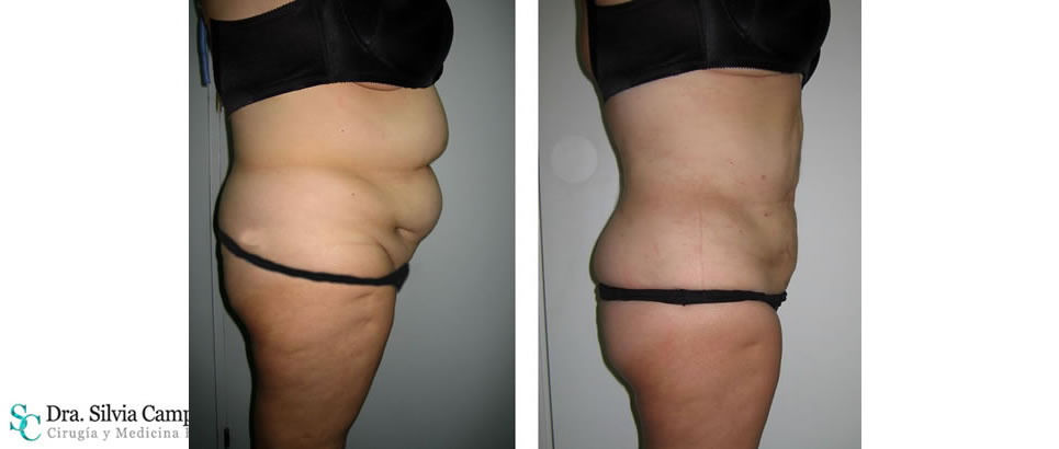 abdominoplastia-madrid