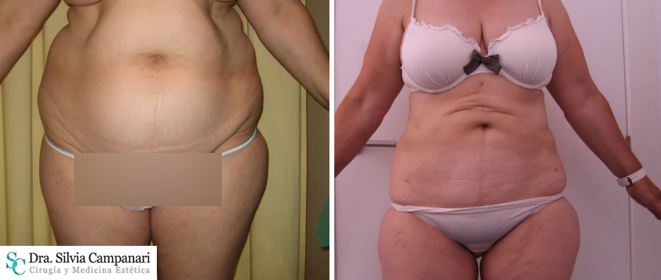 Liposuccion Menopausia–madrid 19
