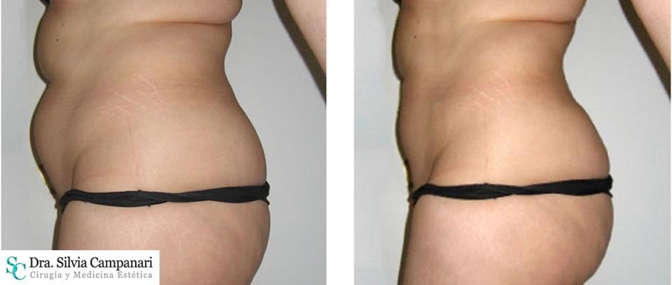 Liposuccion Obesidad001