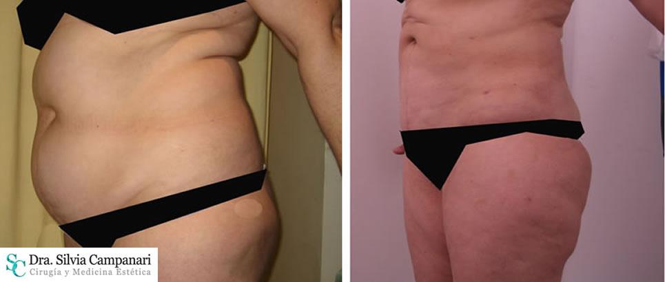 Liposuccion Obesidad005