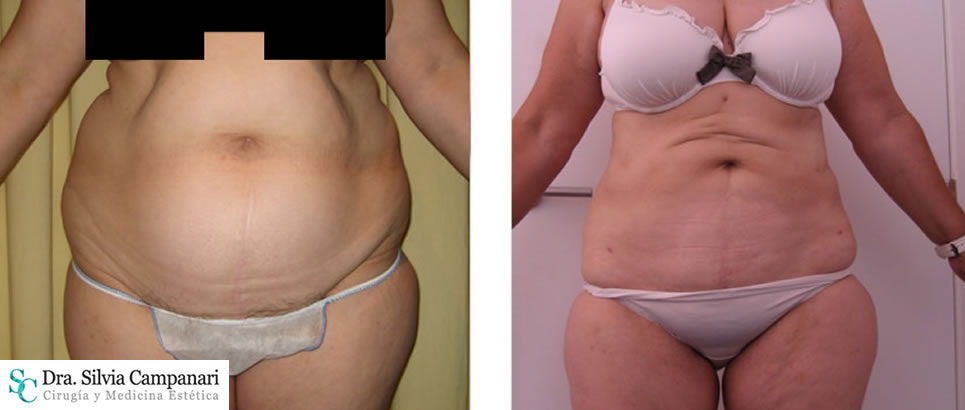 Liposuccion Obesidad006