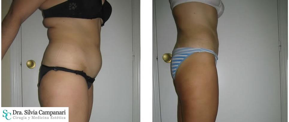 Liposuccion Obesidad010