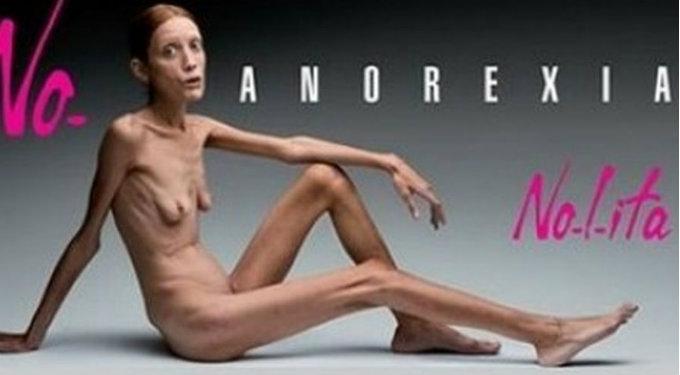 Anorecxia Buena