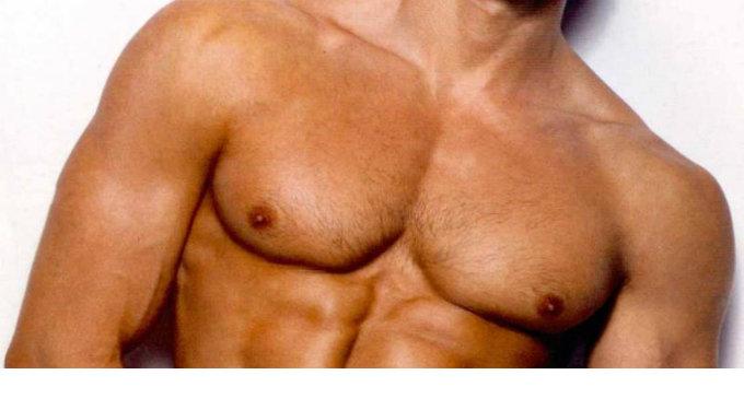 Liposucción Gigantomastia