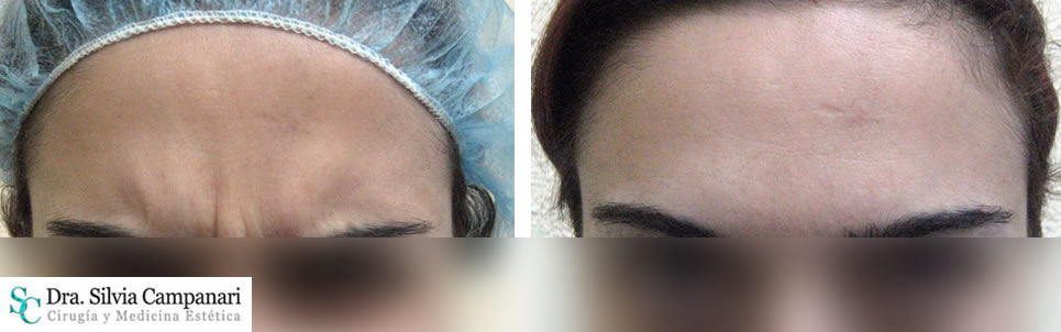Botox-madrid-11