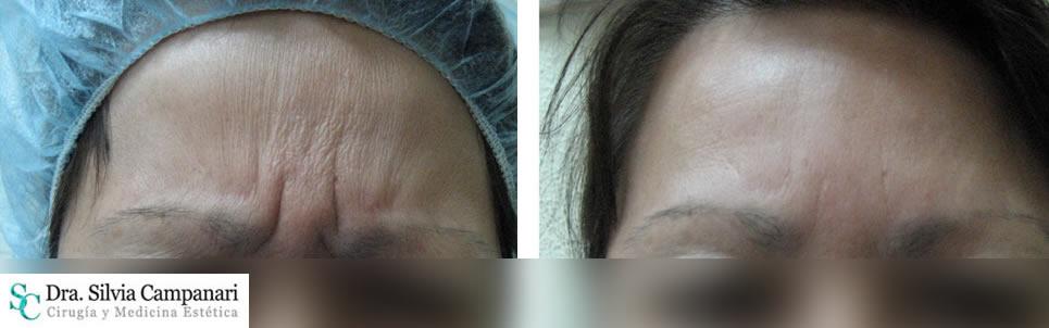 Botox-madrid-6