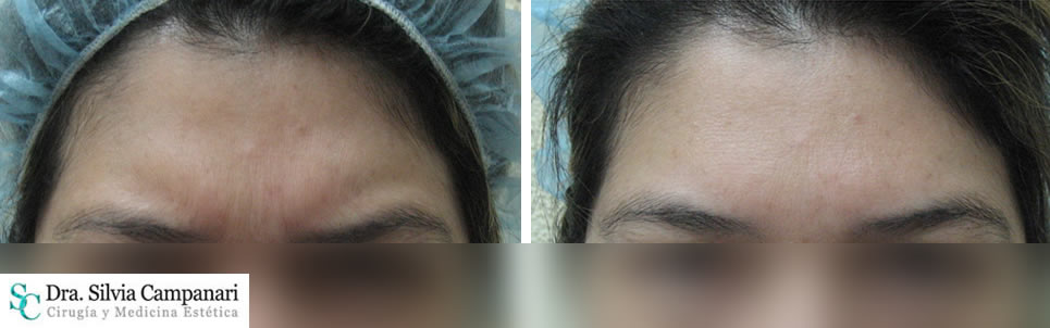 Botox-madrid-7