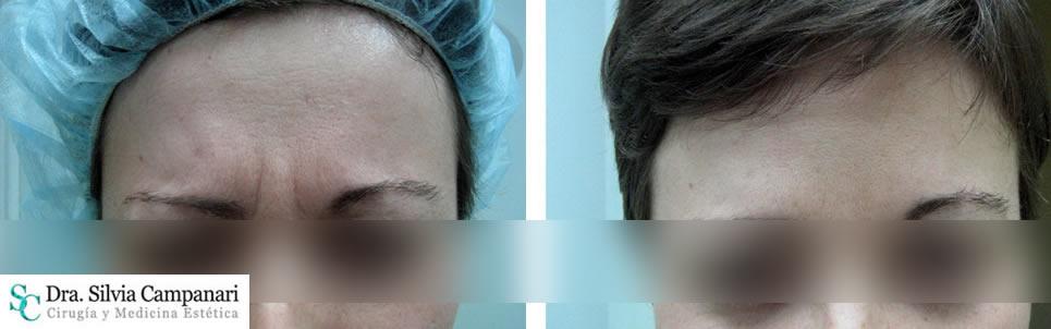 Botox-madrid-8