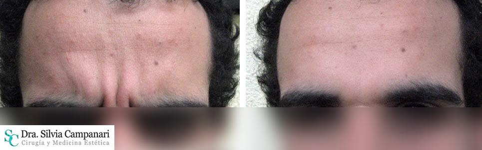 Botox-madrid-9