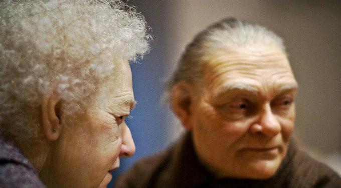 Rinoplastia, ¿la Nariz Envejece?